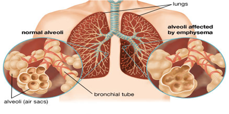 seek medical care for 6 common complications of copd